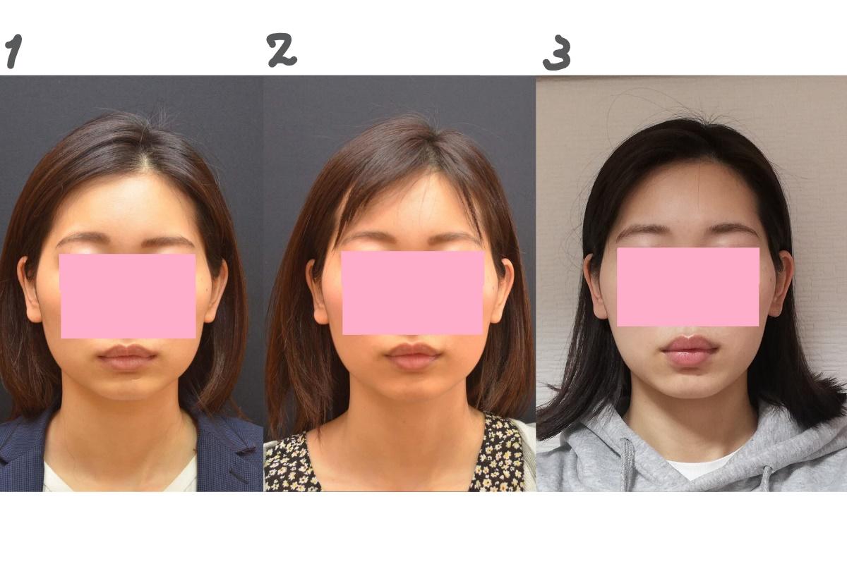 2~3週間経過、エラボトックス効果を実感
