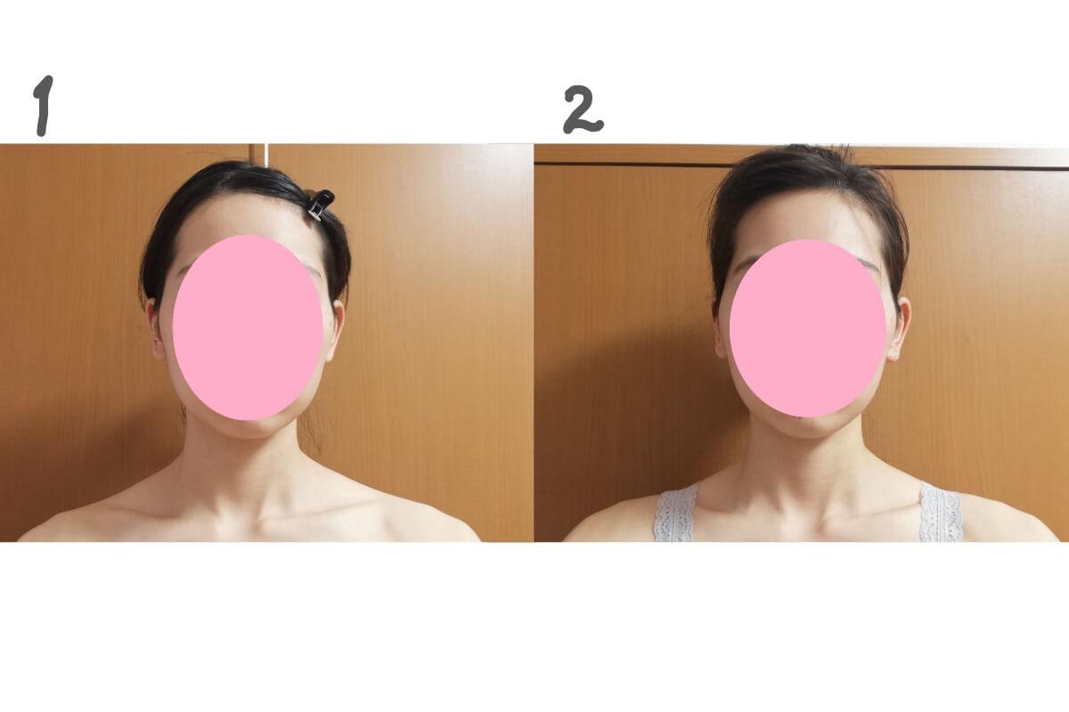 肩ボトックスの効果は……?肩こりも見た目も正直微妙。術後2週間くらい筋肉痛みたいな鈍いだるさ